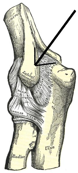 tennis elbow tendonitis