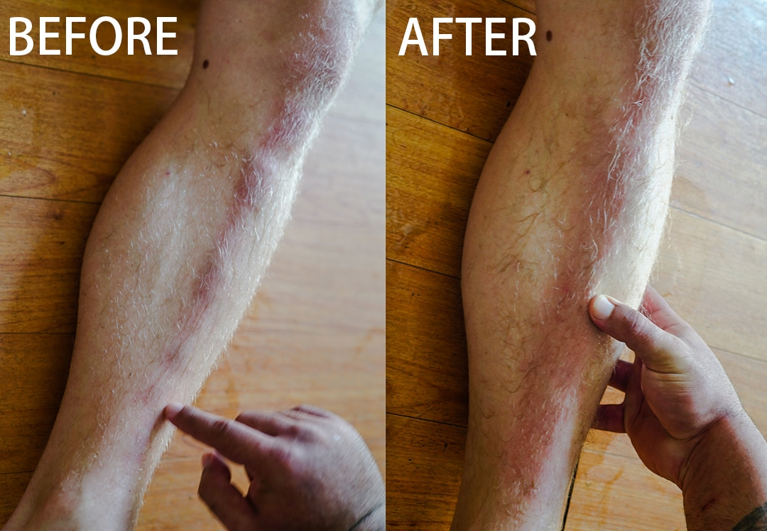 This is why you MUST massage after the hardening practice. Before massage the leg is covered in bumps and lumps which may not fully recover. After the massage, it's all flat.